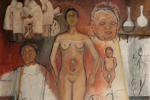 Фрида Кало. Фрида и кесарево сечение (незавершенная работа)