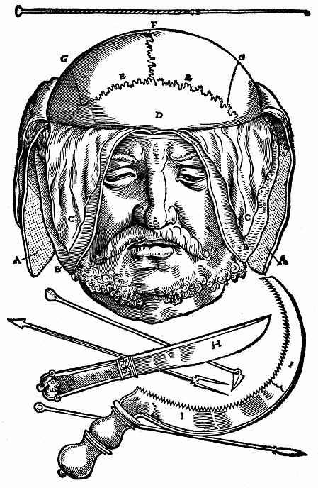 Ханс Бальдунг. Мужская голова со скальпированным черепом