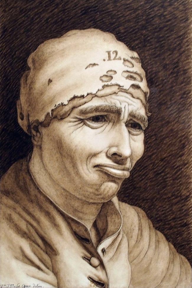 Jean-Jacques-Lequeu. A man with a lip