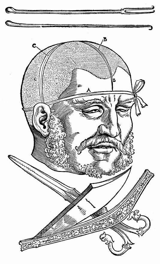 Ханс Бальдунг. Остриженная мужская голова