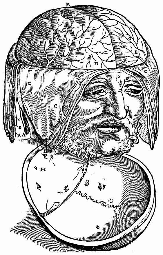 Ханс Бальдунг. Мужская голова с обнаженным головным мозгом