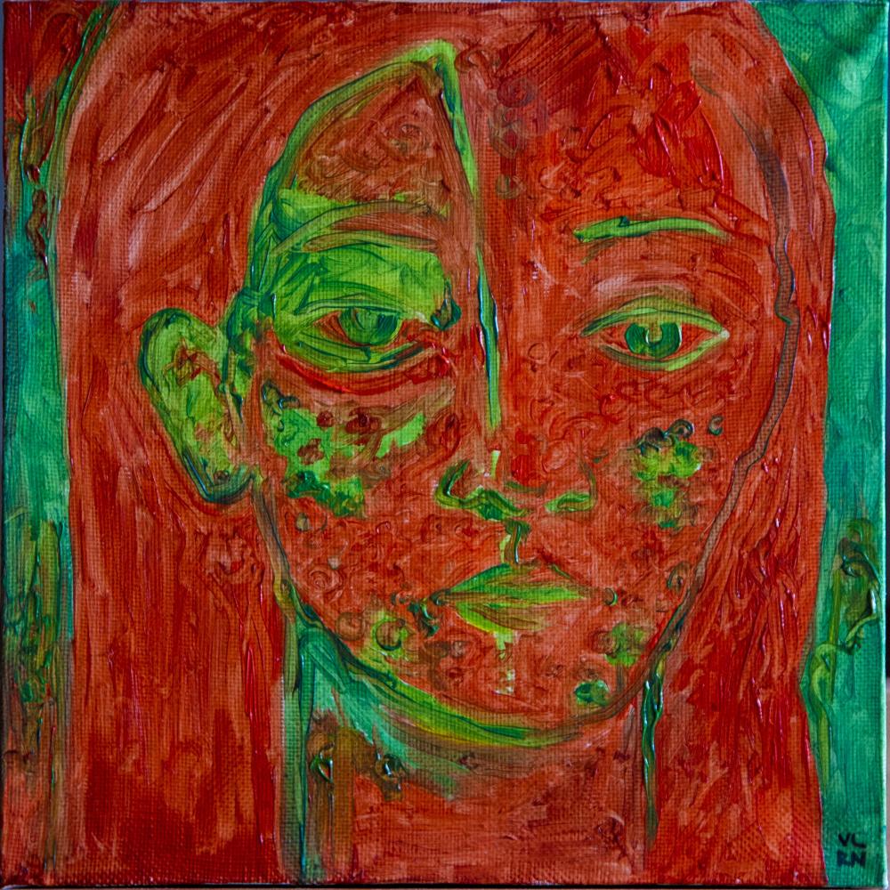 Valeria Tynyanaya. Radioactive skin