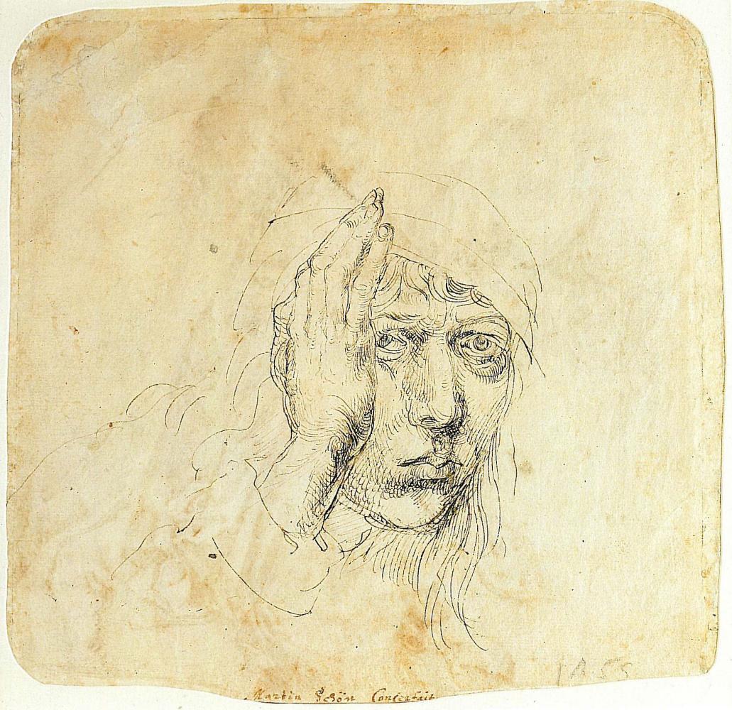 Albrecht Dürer. Self-portrait with a bandage