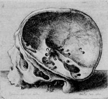 Венцель Холлар. Распиленный человеческий череп