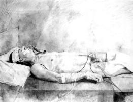 Антонио Лопес Гарсия. Больной