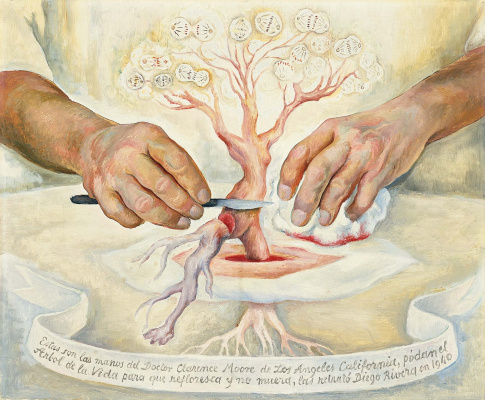Diego Maria Rivera. Hands of Dr Moore