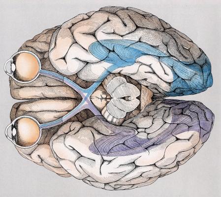 Кэрол Доннер. Мозг