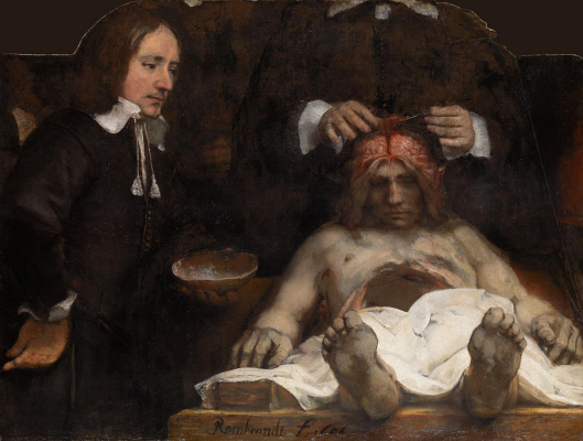 Rembrandt Harmenszoon van Rijn. Anatomy lesson Dr. Deyman