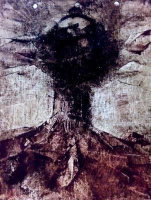 Sasha Vladimirovich Lis. Schizophrenia