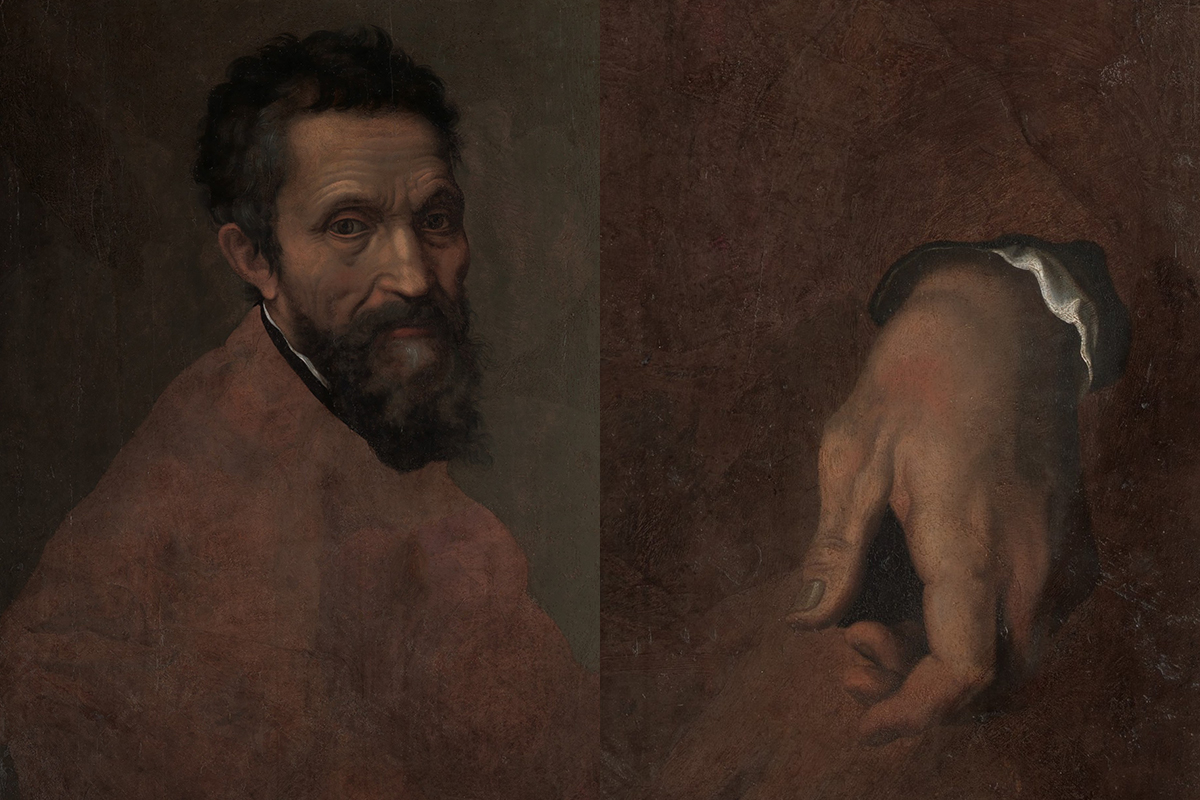 Diagnoses Game. What Do Doctors See in the Paintings of Great Artists