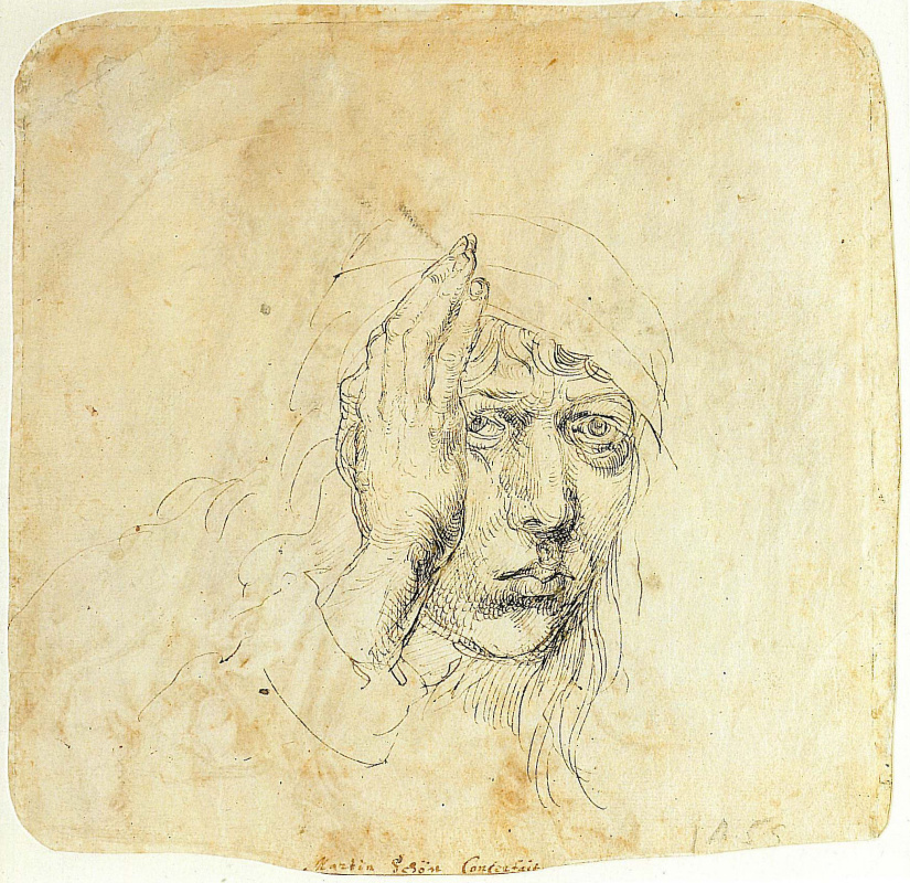 Albrecht Dürer. Self-portrait with a bandage