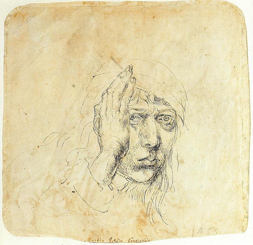 Albrecht Durer. Self-portrait with a bandage